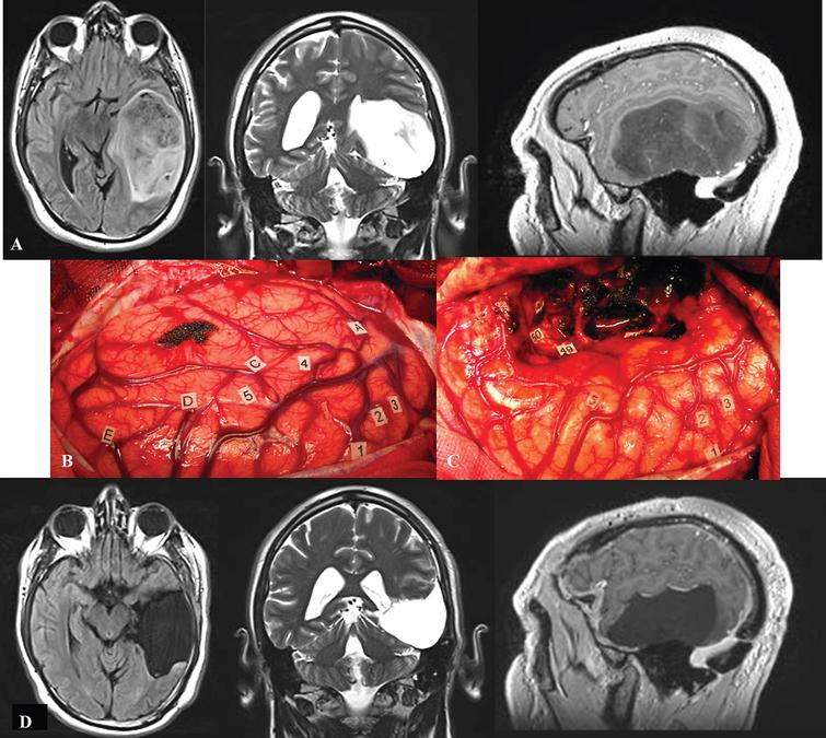 A. Preoperative axial FLAIR-weighted MRI, coronal T2-weighted MRI and sagittal enhanced T1-weighted MRI, in a 42 year-old right-handed male who presented with partial seizures and language disorders on presurgical cognitive examination, showing a voluminous glioma involving the left temporal lobe. B: Intraoperative view before resection. The anterior part of the left hemisphere is on the right and its posterior part is on the left. Letter tags correspond to the projection on the cortical surface of the tumor limits identified using ultrasonography. Number tags show zones of positive DES mapping as follows, 1, 2 and 3: ventral premotor cortex (generating anarthria during DES); 4 (mid-part of the superior temporal gyrus): areas involved in lexical access (eliciting anomia during DES); 5 (posterior part of the superior temporal gyrus): areas involved in semantic processing (inducing semantic paraphasia during DES). C: Intraoperative view after resection, achieved up to eloquent structures, both at cortical and subcortical levels. Indeed, DES of white matter tracts allowed the detection of the ventral stream underpinned by the IFOF (eliciting semantic paraphasias when stimulated, tag 46); the detection of the inferior longitudinal fascicle (anterior part of the posterior segment, generating reading disturbances during DES, tag 47); the optic radiations more deeply located (inducing transient visual disturbances when stimulated, tag 50); as well as the detection of the temporal part of the SLF subserving the dorsal stream (eliciting phonological disorders when stimulated, tag 49). D: Immediate axial FLAIR-weighted MRI, coronal T2-weighted MRI and sagittal enhanced T1-weighted MRI, showing a complete tumor removal. The patient benefited from a cognitive rehabilitation within the weeks following resection, and improved in comparison with the presurgical status, on the postsurgical language assessment achieved 3 months later. The diagnosis of low-grade glioma was confirmed, and no adjuvant oncological treatment was administrated. The patient resumed a normal familial, social and professional life within 3 months following surgery, with no functional deficits (no neurological and no cognitive disorders, no seizures) thanks to the preservation of the subcortical connectivity - despite an extensive resection of the temporal lobe in the left hemisphere.