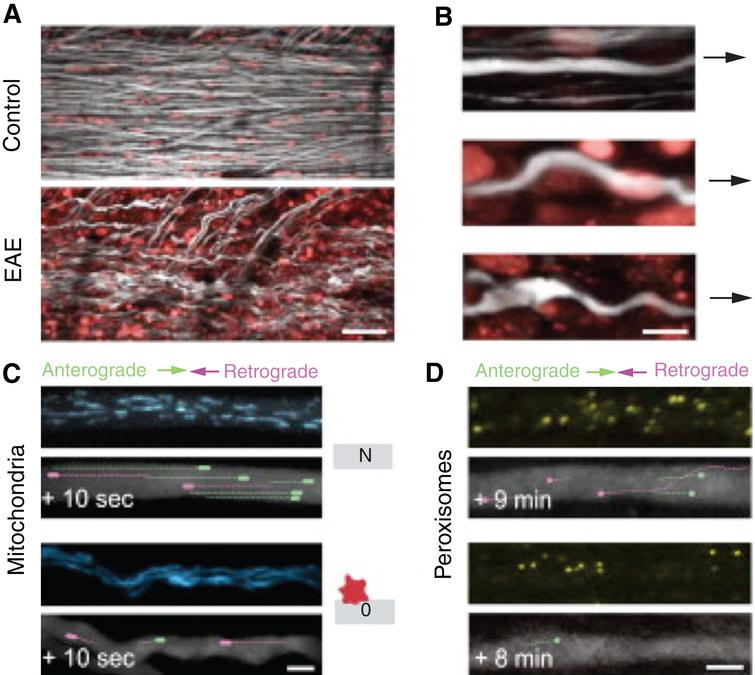 In vivo of Organelle Transport in neuroinflammatory lesions (A) In vivo two-photon image of the spinal cord of a control Thy1 -YFP-16 × Thy1-MitoCFP-P mouse (top) and a Thy1-YFP-16 × Thy1-MitoCFP-P mouse 2 days after onset of EAE (bottom; axons, white; nuclei labeled by in vivo application of Nuclear-ID Red, red; mitochondrial channel not shown). (B) Magnified views of axons from neuroinflammatory lesions illustrating different stages of axon morphology (N, axon from a control mouse; normal-appearing axon within an inflammatory lesion and swollen axon within an inflammatory lesion. (C and D) In vivo two-photon time-series images of control axons (top) and stage 0 axons imaged 2 days after onset of EAE (bottom) with moving mitochondria (C), in Thy1-YFP-16 × Thy1-MitoCFP-P mice, and peroxisomes (D), in Thy1-OFP-3 × Thy1-PeroxiYFP-376 mice, represented as pseudo-colored overlays (lines represent tracks during the indicated time period). Note that anterograde transport is more significantly affected than retrograde transport (adapted with requested permission from Ref. 58).