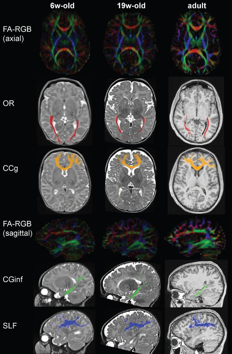 Main bundles assessed by tractography are similar in early life and adulthood. DTI color-coded directionality maps (FA-RGB) for two infants of different ages (6 and 19 weeks old) and a young adult, on axial and sagittal views, and tract reconstructions superposed to anatomical images (T2-weighted in infants, T1-weighted in adult) for four examples of bundles (projection: optic radiations OR, commissural: genu of the corpus callosum CCg, limbic: inferior branch of the cingulum CGinf, association: superior longitudinal fasciculus SLF). Other examples of tracts can be found in [7, 40, 43].