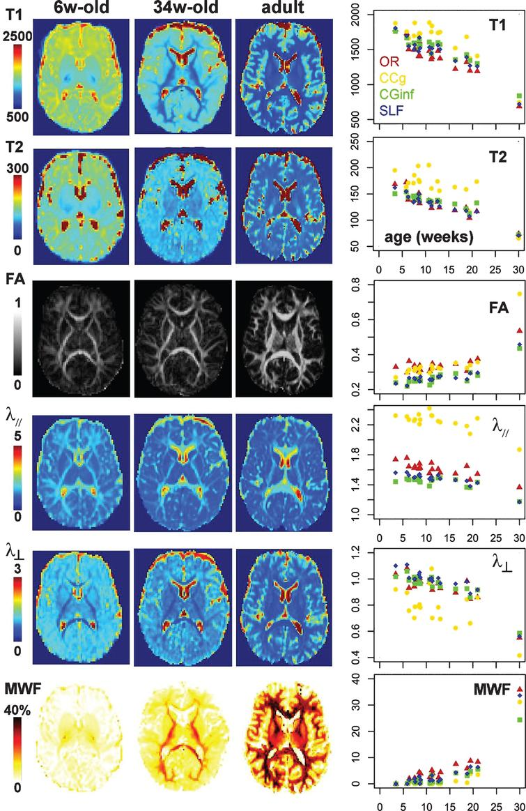 Asynchrony and spatial heterogeneity of maturation quantified with MRI parameters. Left rows: Maps of MRI parameters (a: T1, b: T2, c: DTI fractional anisotropy FA, d: longitudinal diffusivity λ//, e: transverse diffusivity λ⊥, f: myelin water fraction MWF) in a 6- and a 34-week-old infant, and a young adult. Right row: Age-related changes in MRI parameters over a group of 17 infants aged between 3 and 21 weeks, for the four white matter bundles shown in Fig. 1 (projection: optic radiations OR, commissural: genu of the corpus callosum CCg, limbic: inferior branch of the cingulum CGinf, association: superior longitudinal fasciculus SLF), suggesting different maturational calendar across bundles. The median values computed over a group of 13 young adults are also indicated on the right of the plots (arbitrary age of 30w). There is a high variability across bundles also at the mature stage particularly in terms of FA, λ// and MWF. For quantification on other bundles, one can refer to [40, 99].