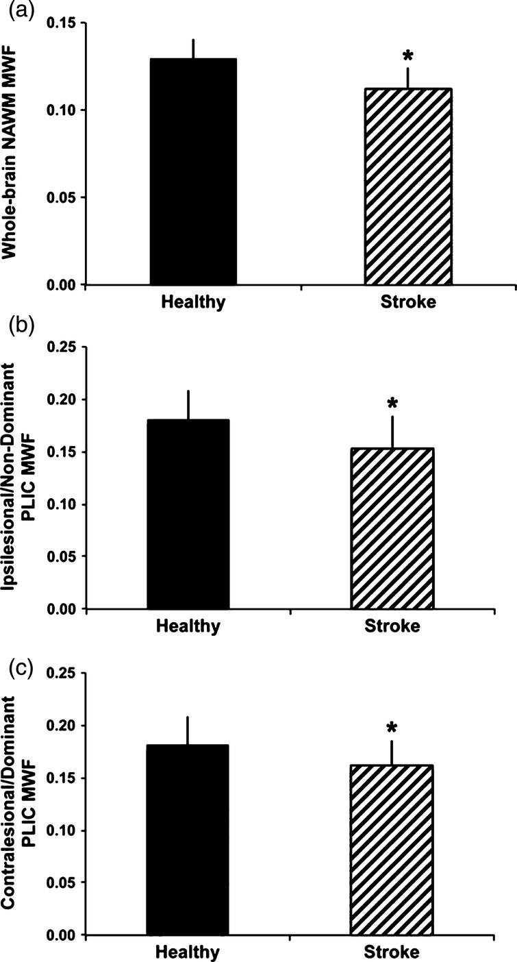 Group differences in myelin water fraction (MWF) between healthy controls and participants with chronic stroke. MWF was significantly reduced in whole-cerebrum normal appearing white matter (NAWM) in the stroke group comparedtowhole-cerebrum NAWMinthehealthy group(A),intheipsilesional posterior limb of internal capsule (PLIC) and non-dominant PLIC MWF in the healthy group (B) and in the contralesional PLIC for the stroke group versus dominant PLIC in the healthy group (C) (*p b 0.05). Error bars represent standard deviation (Fig. 5, Borich MR, Mackay AL, Vavasour IM, Rauscher A, Boyd LA. Evaluation of white matter myelin water fraction in chronic stroke. Neuroimage Clin. 2013;2:569-80).