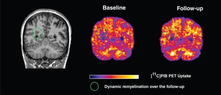 Imaging myelin dynamics by PET. Left, coronal view of the MPRAGE sequence acquired on asingle representative patient with relapsing-remitting MS; Centre, the corresponding [11C]PIB PET at baseline; Right, the second PET time-point acquired 3 months later. Green circles indicate the evolution of single lesions visible as hypointense signals on MPRAGE scans, with areduction in [11C]PIB uptake at baseline reflecting myelin loss, and asubsequent partial increase of the [11C]PIB signal at the second time-point, indicating possible dynamic remyelination.