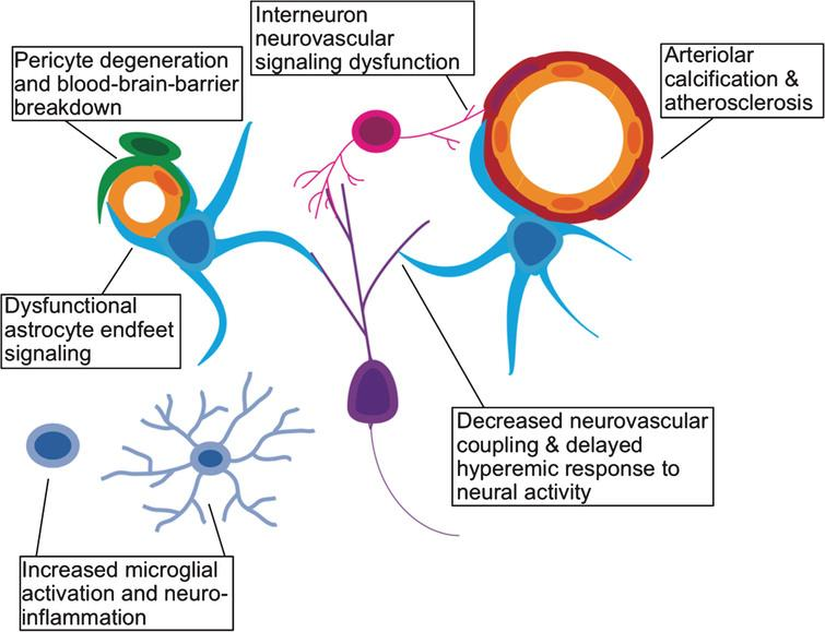 Effects of aging on the neurovascular unit. A schematic representation of the various components of the neurovascular unit including excitatory neurons (purple), interneurons (pink), microglia (light blue), astrocytes (cyan), pericytes (green), vascular endothelium (yellow), and vascular smooth muscle (red).