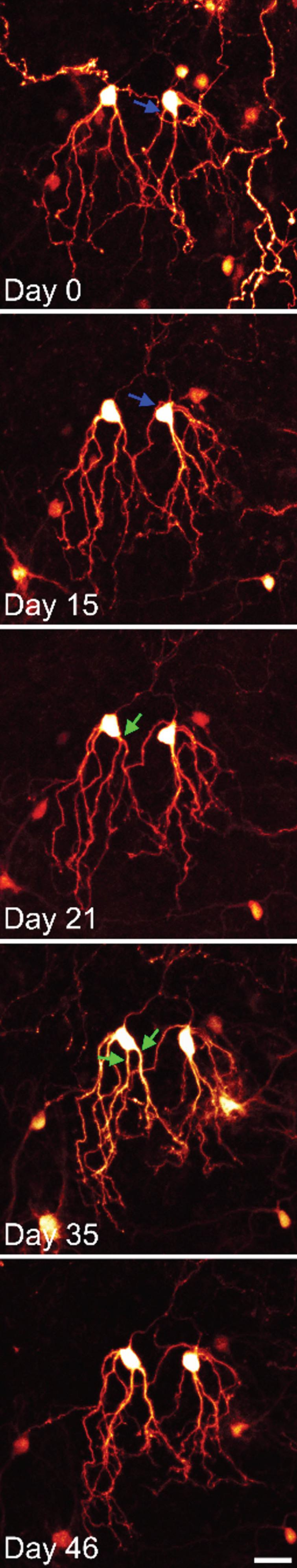 Time series confocal images of YFP-expressing granule cells in an organotypic hippocampal slice culture. The two granule cells shown were imaged over a period of 6 weeks. Both cells show modest somatic translocation, with the soma moving into the apical dendrites. In both cases, this distorts the apical dendritic tree. The blue arrow shows an apical dendrite, which is shifted to the basal pole of the cell. The green arrows show the soma absorbing a dendritic branch point, converting a single primary dendrite into two primary dendrites. Scale bar=20μm.