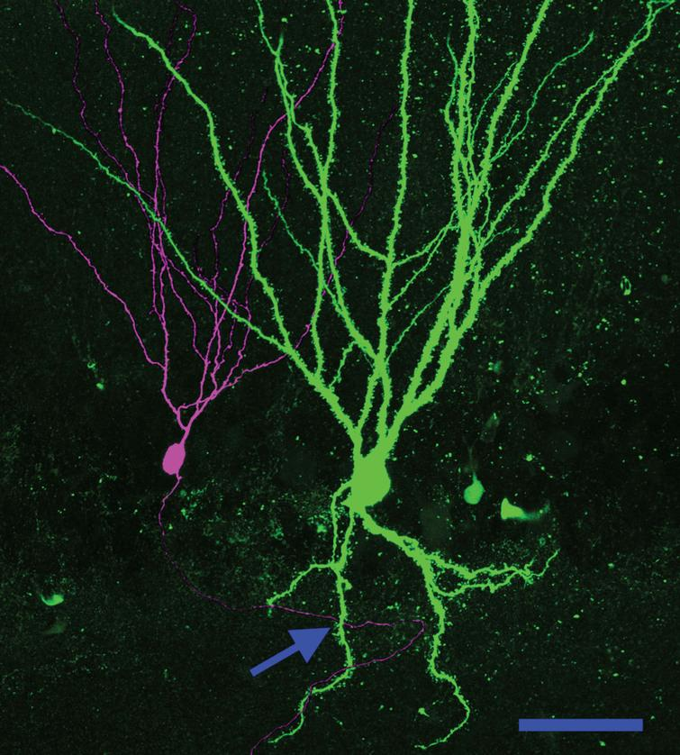 Basal dendrites create a new pathway for recurrent excitatory contacts in the epileptic dentate gyrus. Neuronal reconstruction shows a biocytin-filled PTEN KO cell (green) and a biocytin-filled PTEN-expressing (purple) cell from a PTEN KO (Gli1-CreERT2, PTENfl/fl) mouse. The KO cell exhibits a large basal dendrite. The arrow denotes a point where the axon of the wildtype cell occupies the same focal plane in the z-axis as the PTEN KO cell basal dendrite, suggesting that a synaptic contact could be formed. Scale bar=50μm.