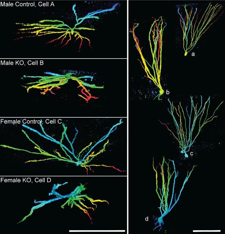 Images show granule cell reconstructions of PTEN expressing (control) and PTEN knockout (KO) cells from Gli1-CreERT2, PTENfl/fl mice. Cell morphology was revealed by biocytin filling. Cells are projected from above (left, cells A–D), looking down from the top of the dendritic tree towards the soma, and in profile (right, a–d). Note the more limited spread of the dendritic tree among KO cells, and frequent overlapping dendrites. Reconstructions are color-coded by depth. Scale bars=100μm. Imaged reproduced from Santos et al. [56].