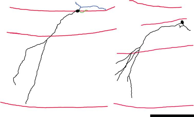 """Neurolucida reconstructions of Thy1-GFP-expressing newborn hippocampal granule cells from mice rendered epileptic using the pilocarpine status epilepticus model. Dendrites and somas are shown in black, axons in blue and basal dendrites in green. Red lines denote the hilar—granule cell body layer border, the granule cell body layer—molecular layer border, and the hippocampal fissure, from top to bottom, respectively. The primary dendrites of these granule cells project obliquely into the molecular layer, rather than directly – as is typical for this cell type. The abnormality gives the cells a """"windswept"""" appearance. Scale bar=100μm. Portions of this image are reprinted from Santos et al. [55]."""