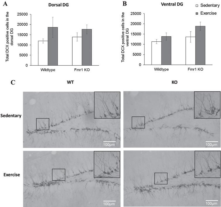 Long-term running did not influence the number of newborn neurons in Fmr1 KO mice. (A, B) The number or DCX positive neurons remained unaltered by long-tern running in both dorsal and ventral hippocampus (*p < 0.05). (C) Representative images of DCX-positive cells. Scale bar: 100μm.