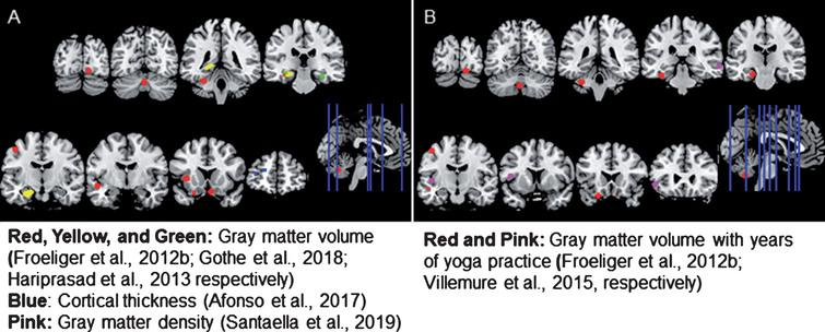 Brain regions showing A) structural differences in yoga-practitioners compared to non-practitioners or B) a dose-dependent relationship between years of yoga practice and brain structure among practitioners. Yoga practitioners exhibited greater cortical thickness, gray matter (GM) volume, and GM density than non-practitioners in a variety of regions. Among yoga-practitioners, a positive relationship between the years of yoga practice and GM volume was also observed in a number of areas. All but one of the regions shown were created by making a 5 mm sphere around the coordinates provided in the studies reviewed. Since Gothe et al. (2018) did not investigate volume differences on a voxel-wise basis, a mask of the whole structure is shown.