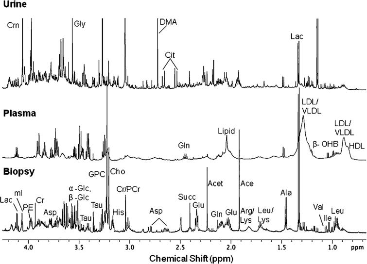 Expanded aliphatic region (0.5–4.2 ppm) of 1D 1H NMR spectra acquired at 700 MHz in D2O at 25°C of (a) perchloric acid extract of intestinal mucosal biopsy, (b) blood plasma, and (c) urine obtained from a patient with CeD. Abbreviations used: HDL– high density lipoprotein; LDL– low density lipoprotein; VLDL– very low density lipoprotein; Leu– leucine; Ile– isoleucine; Val– valine; β-OHB– β-hydroxy-butyrate; Lac– Lactate; Ala– alanine; Lys– lysine; Arg– arginine; Ace– acetate; Glu– glutamate; Gln– glutamine; Acet– aacetoacetate; Succ– succinate; Cit– citrate; DMA– dimethyamine; Asp– aspartate; Cr– creatine; PCr– phosphocreatine; His– histidine; Cho– choline; GPC– glycerophosphocholine; Tau– Taurine; Gly– glycine; Glc– glucose; mI– myo-inositol; Crn– Creatinine; PE– phosphoethanolamine.