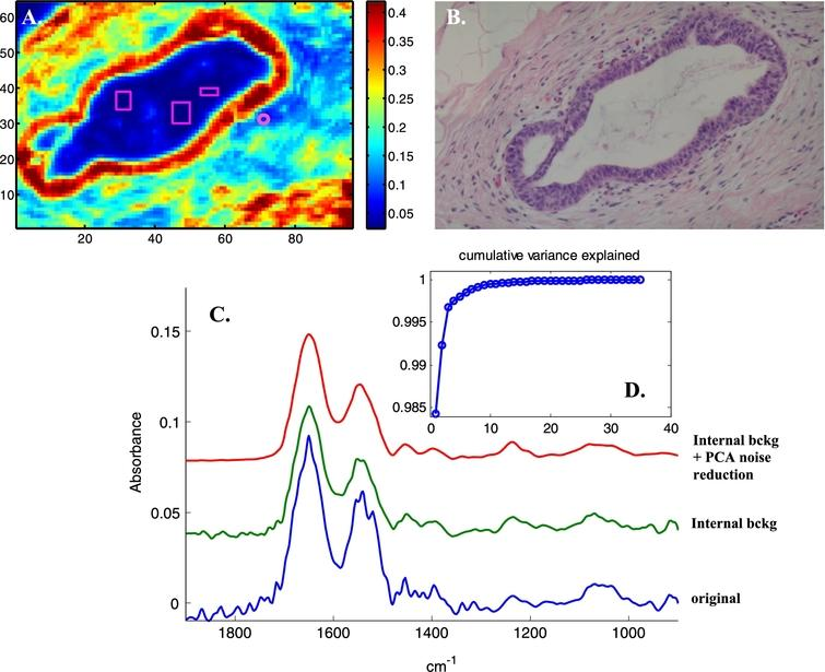 """Illustration of noise reduction. A, Absorbance image (A1654 cm−1) of a section in normal breast tissue showing a duct surrounded by a dual layer of epithelia resting on a basement membrane and enveloped by stroma as visible on the H&E-stained adjacent section (B). All spectra were baseline corrected, a linear baseline passing by the spectra at 1724, 1478 and 1138cm−1 was subtracted. The small circle on panel A indicates a pixel where the stroma provides a weak spectrum (A1654 < 0.1). This spectrum is reported between 1900 and 900cm−1 in panel C and is labelled """"original"""" (blue spectrum). Three rectangles have been drawn within the duct (panel A) at position where no infrared signal could be detected. These areas can be easily detected by filtering the pixels for SNR< 10. All the spectra present in these areas were then averaged and the obtained average was subtracted from all the spectra of the image. The spectrum of the pixel surrounded by a circle after this internal background correction is shown in panel C, green spectrum. After PCA (1900–900cm−1) and rebuilding all the spectra of the image with the first 10 PCs, the spectrum of the circled pixel in panel A becomes the red spectrum in panel C. The cumulative variance explained as a function of the number of the PCs is reported in panel D."""