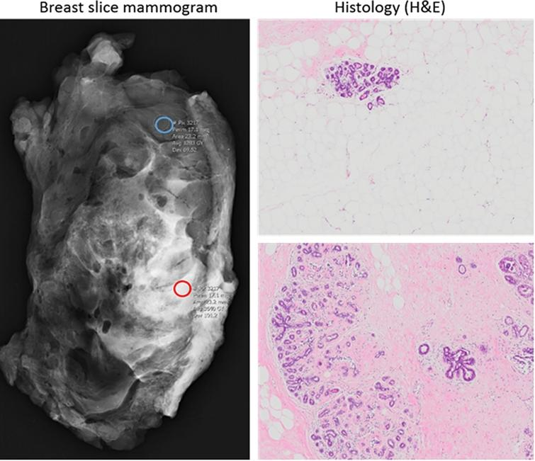 Left panel: Mammogram of breast slice indicating regions of high (red circle) and low (blue circle) mammographically dense tissue. Right panel: Haematoxylin and eosin (H&E) stain of representative low-MD (top) and high-MD (bottom) regions following histological processing (4X objective).