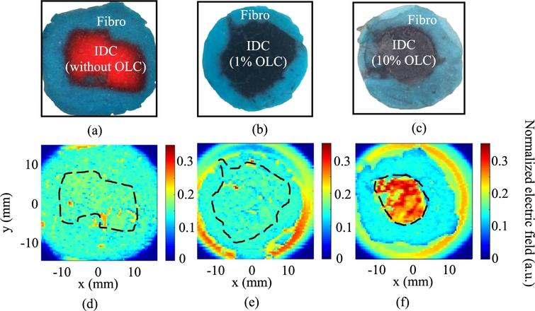 THz reflection imaging of combined phantoms shown in photographs for (a)photo of IDC phantom with no onion-like carbon (OLC), (b)photo of IDC phantom with 1% of 100 nm OLC, and (c)photo of IDC phantom with 10% of 100 nm OLC. THz images in (d)–(f) show the resulting THz reflection images for (d)no OLC in IDC, (e)1% OLC in IDC, and (f)10% OLC in IDC [5].