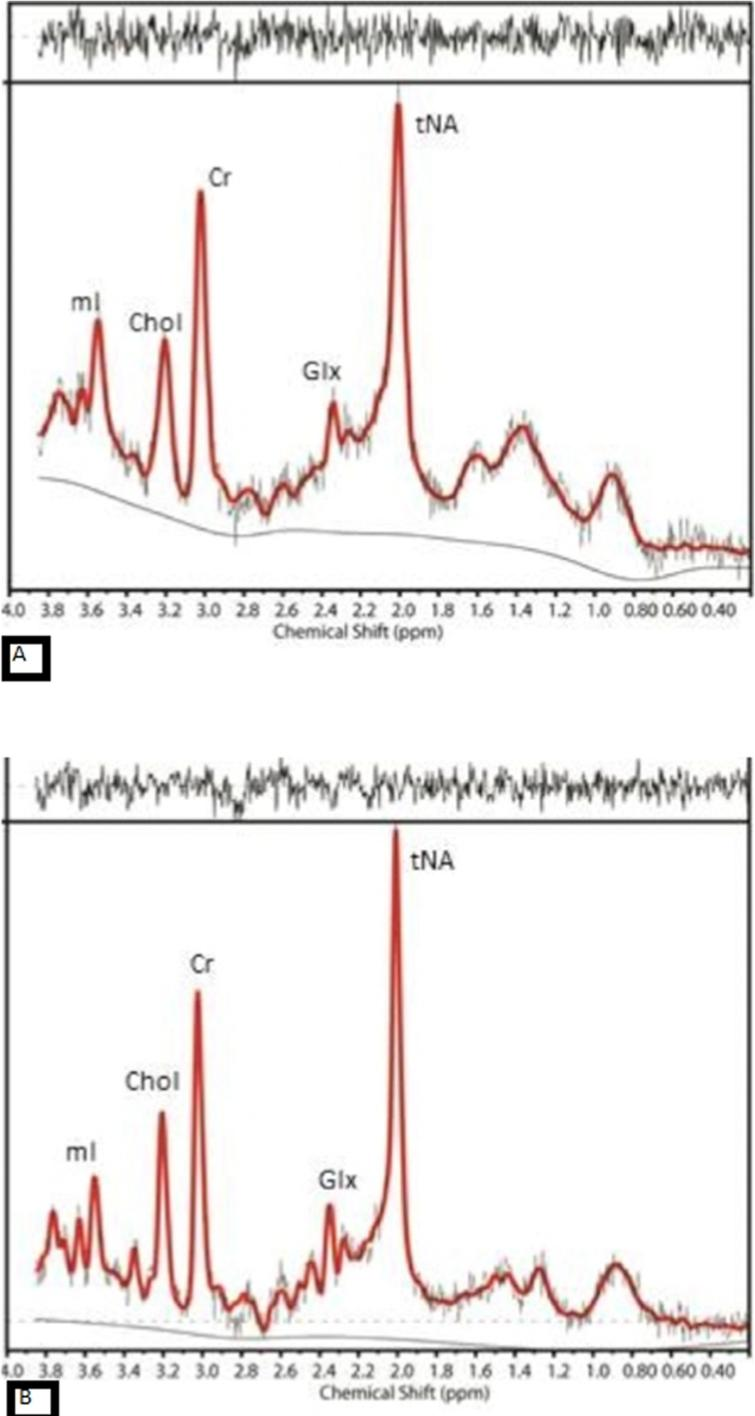 The MR spectra from posterior cingulate gyrus of (A) an AD case with amyloid deposition and (B) an aged-match control with no evidence of amyloid in the brain, show reduction in NAA and increase in mI in AD compared to control.