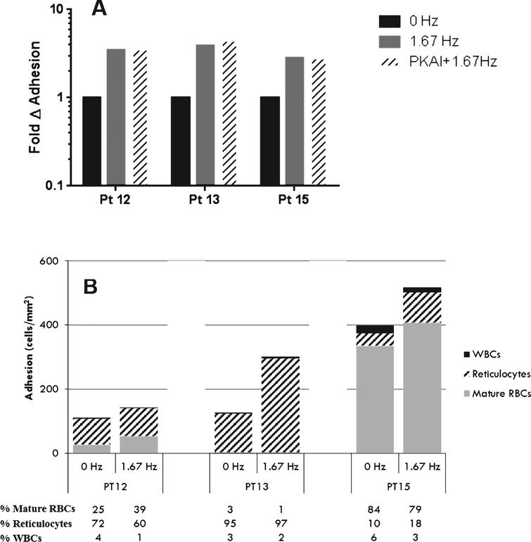 Pulsatile flow conditions increase adhesive interactions in the context of whole blood independent of PKA. A) Adhesion of whole blood pretreated with vehicle or 30nM PKA inhibitor for 30 minutes was measured at 1dyne/cm2 during non-pulsatile (0Hz) or pulsatile (1.67Hz) flow conditions. B) Cellular components of whole blood adhering to VCAM-1 were identified by fixing adherent cells to the micro-fluidic channel and staining with DAPI (nucleic acid) and anti-CD71 antibody (transferrin receptor). C) Representative photomicrographs from Fig. 5B (Patient 15).