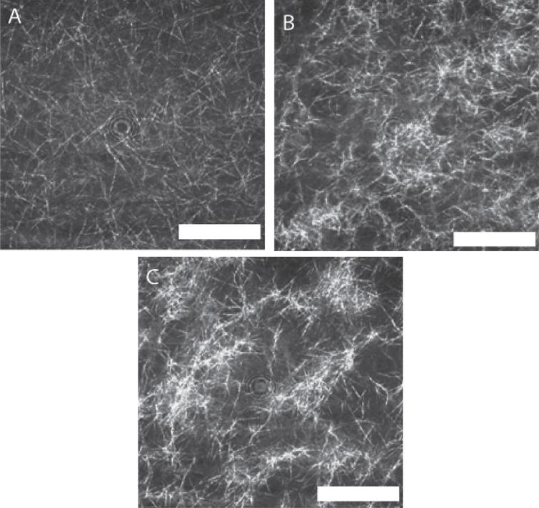 LSCM images of a fibrin gel formed under SAOS and those formed under CSPS at three different levels of shear stress. Fibrin gel network formed under (A) SAOS (σs= 0 Pa), (B) CSPS (σs= 0.1 Pa) and (C) CSPS (σs= 0.35 Pa) with the corresponding values of df being 1.99 (± 0.01), 2.03 (± 0.01) and 2.3 (± 0.05), respectively. The images were acquired immediately following the attainment of the GP in the rheometer. The scale bar width is 20 μm.