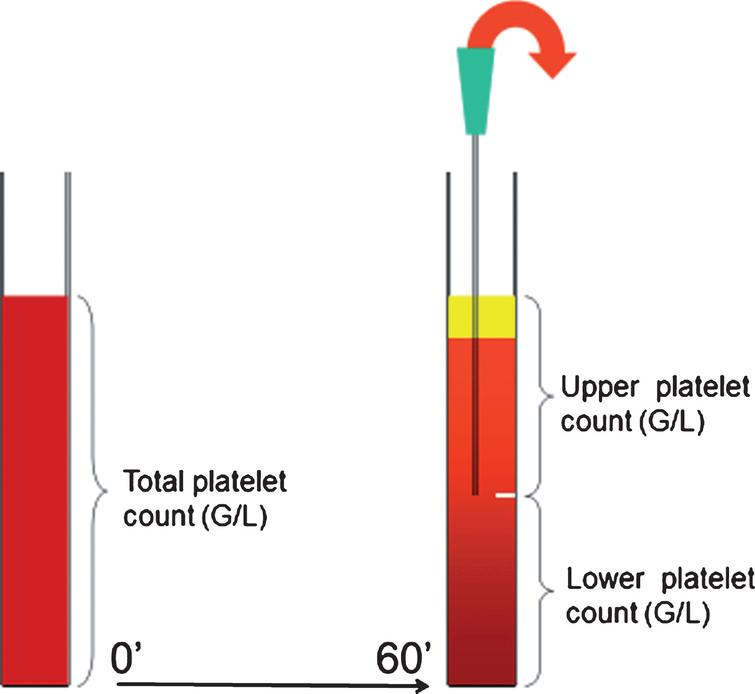 Schematic drawing of platelet antisedimentation measurement.