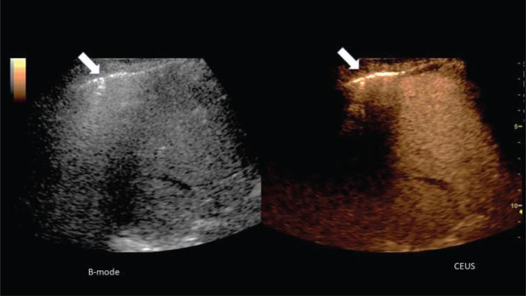 Representative CEUS images of liver and lung from a male 52 years old patient with COVID-19 disease of arrow with respiratory failure and inflammatory reaction of the lung with consolidations.