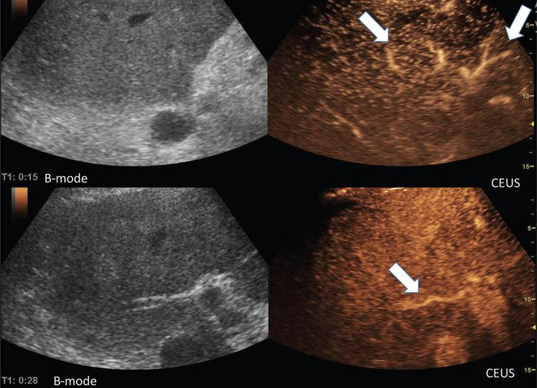 Representative images of the microvasculature of the liver from a 51 years old male patient with COVID-19 disease.