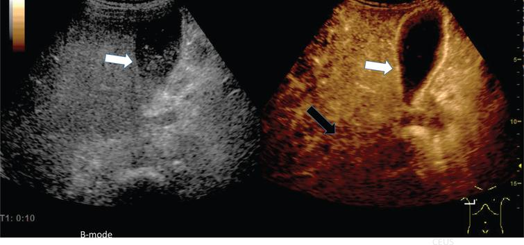 Inflammatory reaction of the gallbladder in a of a 73 years old male patient with COVID-19 disease.