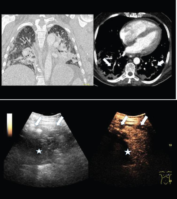 2A: Contrast enhanced computed tomography (CT) of a 56 years old female COVID-19 patient with pulmonary arterial embolism of the right lung (arrow) and consolidation on both sides. Documentation with two different windows for vascular structures and lung parenchymal changes.
