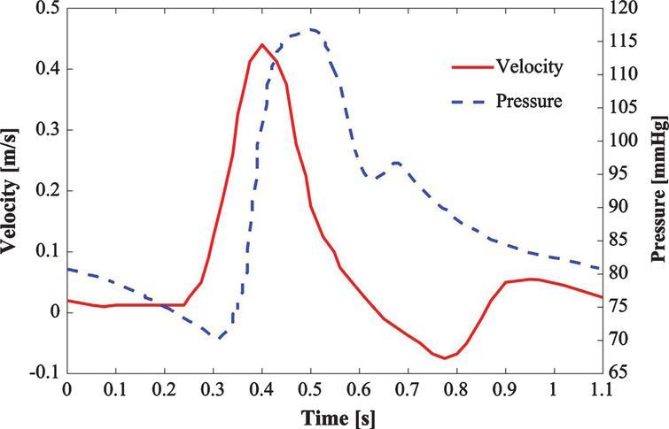 Velocity and pressure waveforms (Mills et al. [34]).