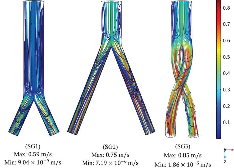 Mean velocity streamline plots of the (SG1) bottom-up nonballet-type model (SG2) top-down nonballet-type model (SG3) top-down ballet-type model under peak pressure conditions (0.5s).