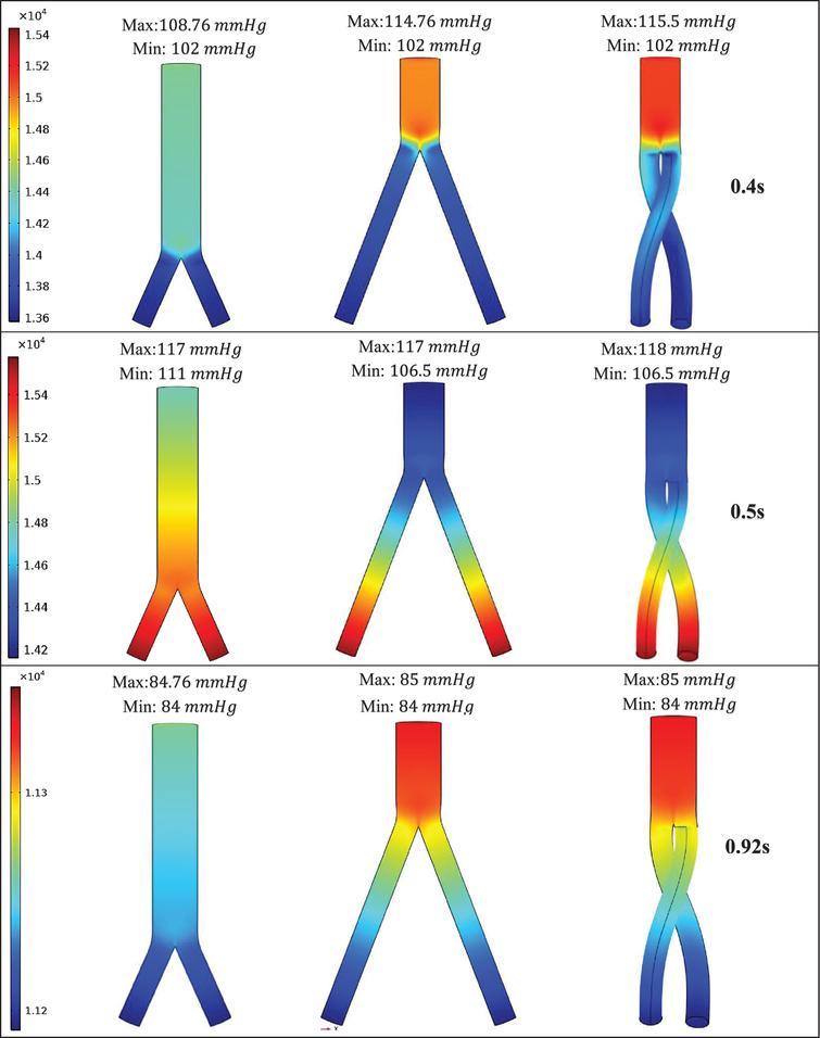 Pressure distribution under systolic (0.4s), peak pressure (0.5s), and diastolic (0.92s) conditions.
