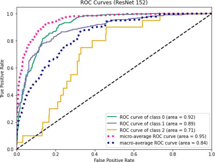 ROC curves for ResNet152.