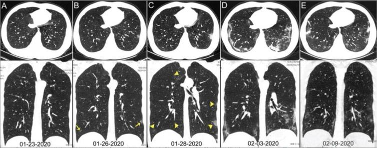 Chest CT images of infected person with coronavirus.Source: https://www.itnonline.com/sites/itnonline/files/styles/content-large.