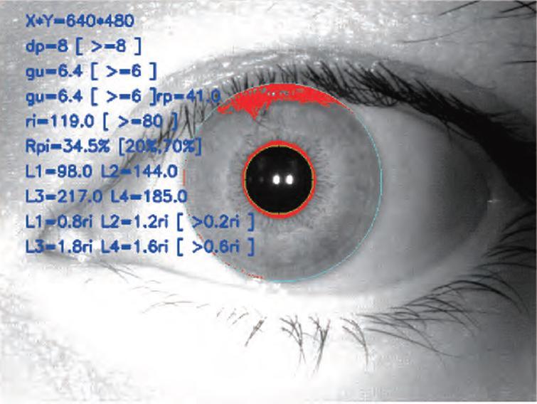 Iris image quantization index.