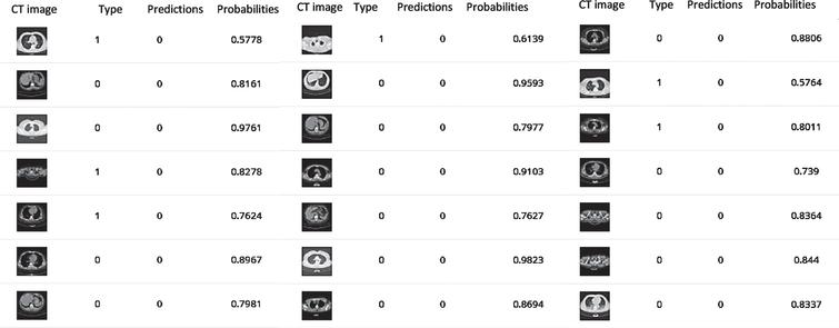 The predicted class probabilities of Inception V3, Resnet (50) and VGG (19) respectively after 10 epochs training.