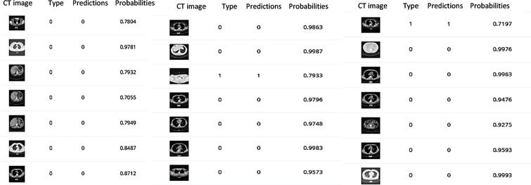 The predicted class probabilities of Inception V3, Resnet (50) and VGG (19) respectively after 50 epochs training