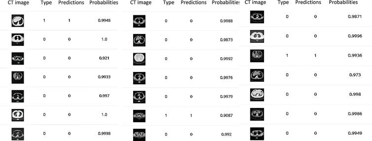 predicted class probabilities of Inception V3, Resnet (50) and VGG (19) respectively after 100 epochs training.