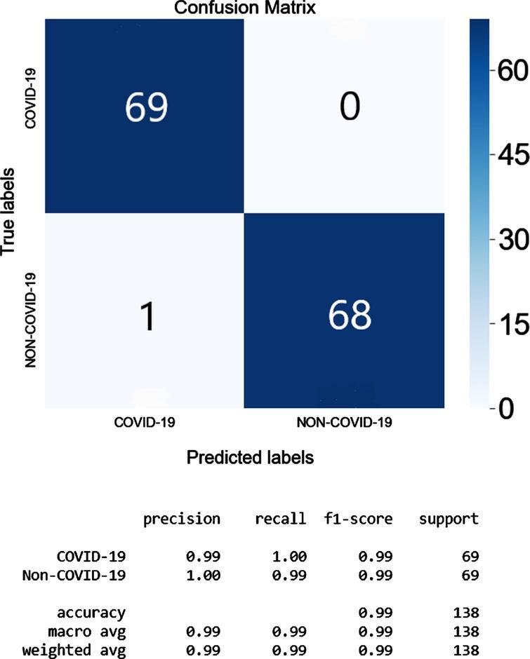The Confusion Matrix and the classification matrix of COVID-19 ResNet_Random Search.