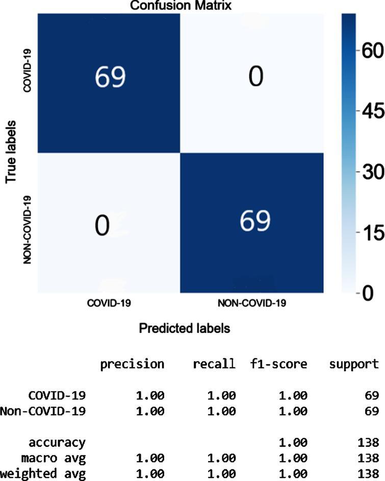 The Confusion Matrix and the Classification Matrix of COVID-19 Xception_Random Search.