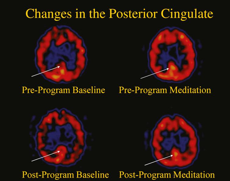 Changes in the posterior cingulate gyrus.