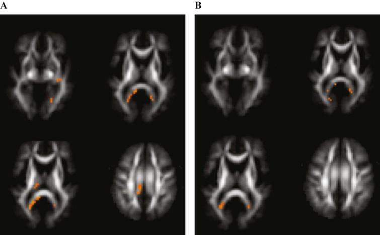 Voxels reaching statistical significance (p< 0.05) after FWE correction on whole-brain level for multiple comparison in Alzheimer's disease versus control subjects at a cluster threshold of 20. No differences were found in fractional anisotropy. A) Regions with increased mean diffusivity. B) Regions with decreased mean kurtosis.