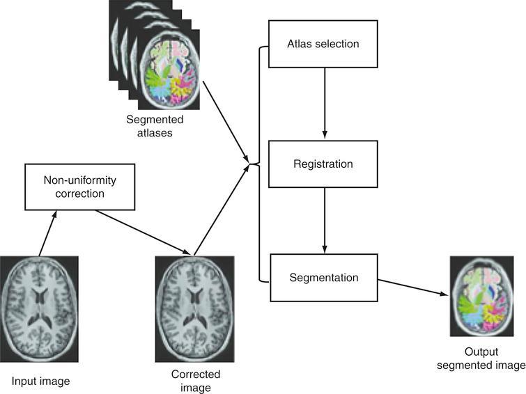 Neuroreadertrademark image processing pipeline.
