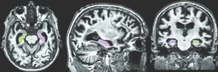 Color coded hippocampal image segmentation.