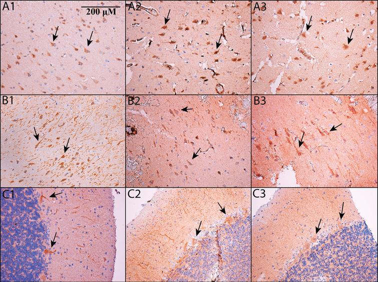PDE5 is expressed in neurons. Immunohistochemistry was performed on formalin-fixed, paraffin embedded sections of cortex (A1-A3), hippocampus (B1-B3; shown is subfield CA2/3 – see main text for details) and cerebellum (C1-C3). All images are shown at 200x magnification; the scale bar in Panel A1 applies to all panels. Panels A1, B1, and C1 use an Abcam antibody, panels A2, B2, and C2 use a Santa Cruz antibody, and panels A3, B3, and C3 use an Atlas antibody (see Methods). In all cases, PDE5 is expressed in the cytoplasm of neurons. In cortex and hippocampus, PDE5 is expressed primarily in large, pyramidal-type neurons (see arrows), whereas in cerebellum, it is prominent in Purkinje neurons (see arrows).
