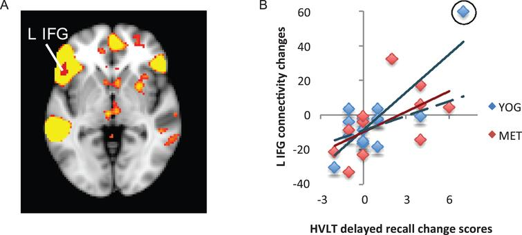 Changes in functional connectivity within the language network correlated with improved verbal memory. A) The language resting-state network is displayed in yellow on a template brain in neurological orientation. A single region in the left inferior frontal gyrus (L IFG) showed a significant positive correlation between changes in language-network connectivity and improved verbal memory measured with the Hopkins Verbal Learning Test (HVLT). This region is displayed in red (z< 2.3, p< 0.05, corrected). B) A scatter figure displays the positive correlation for the L IFG cluster shown in A for yoga (YOG, blue) and memory enhancement training (MET, red) groups. Trendlines are displayed for each group, including a dashed line for a trendline with an outlier (circled in black) removed for the yoga group.