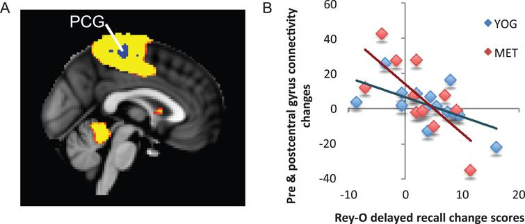 Changes in functional connectivity within the superior parietal network correlated with changes in visuospatial memory. A) The superior parietal resting-state network is displayed in yellow on a template brain. A single region near the pre- and post-central gyri (PCG) showed significant negative correlation between changes in connectivity with the superior parietal network and changes in visuospatial memory measured by the Rey-Osterrieth Complex Figure Test (Rey-O). This cluster is displayed in blue (z <  2.3, p <  0.05, corrected). B) A scatter figure displays the negative correlation for the PCG cluster displayed in A for the yoga (YOG, blue) and memory enhancement training (MET, red) groups. Trendlines are displayed for each group.