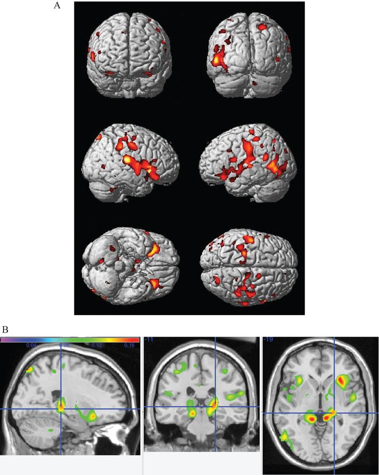 A) Main effect of increasing caloric expenditure on gray matter structure in the CHS. Red and yellow colors reflect larger gray matter volumes in the frontal, temporal, and parietal lobes with FDR <0.05. B) The main effects from panel A overlayed onto orhtogonal slices. Hotter colors denote a stronger effect and the cross hairs highlight the main effect of physical activity in the right hippocampus.