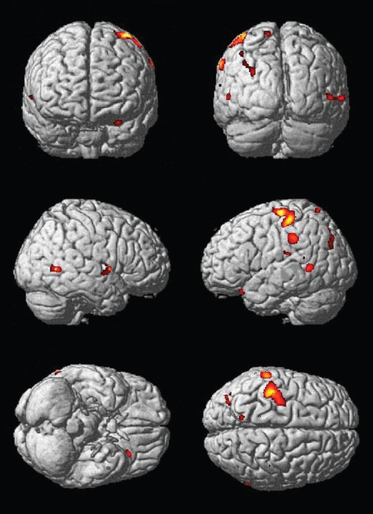 Main effect of change in physical activity over time on gray matter structure. Areas that demonstrated more gray matter volume with increased physical activity over time include the left inferior orbital frontal cortex (–29, 25, –23) and left precuneus (–13, –63, 71).
