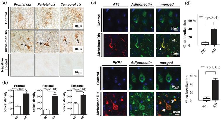 Neurohistochemistry using immunostaining with anti-APN antibody. a) Immunohistochemistry using a polyclonal anti-APN C-terminal antibody in samples from the frontal, parietal and temporal cortex showed strong staining of neurofibrillary tangles (NFTs) in AD brains (middle panel, black arrows), but not in control brains (upper panel). Negative control brain sections treated with secondary antibody without anti-APN antibody showed no staining, indicating the specificity of the anti-APN antibody (lower panel). b) Quantification using Image J showed that the optical density of APN-positive NFTs in (a) was significantly higher in AD brains compared to control brains (p<0.01). c) Confocal laser scanning microscopy of control and AD brains using anti-tau antibodies AT8 (upper) and PHF (lower), and anti-APN antibody showed that APN co-localized with tau in AD. White arrows indicate NFTs identified by the presence of AT8 or PHF-1 immunoreactive abnormal fibrous inclusions, which were within the perikaryal cytoplasm of neurons. d) Quantification with Image J showed that co-localization of APN with NFTs was significantly higher in AD brains than in control brains (p<0.01). Scale bar=10 μm.