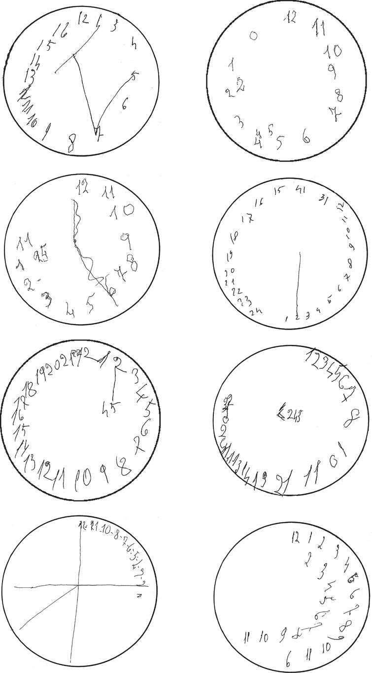 Drawing a clock face on an empty circle, and putting the hands at 2:45. Spatial distortions and errors reflecting impaired semantic knowledge in drawings by patients with Alzheimer's disease (first row). Planning errors, perseverations, and stimulus-bound responses in drawings by patients with severe forms of vascular dementia (second row) and of behavioral variant of frontotemporal dementia (third row). Gross spatial distortions and perseverations in drawings by patients with Lewy body disease (bottom row). Often patients with dementia are not able to draw the clock hands at the given time, and some write numbers instead of drawings the hands.