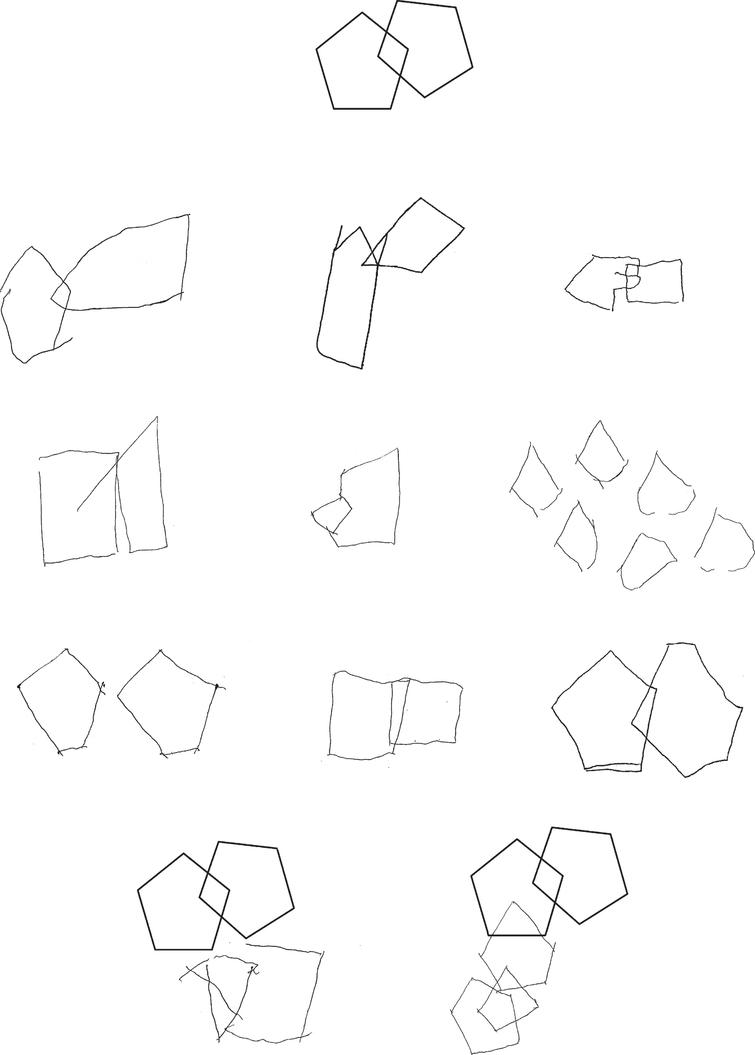 Copying of geometrical drawings: interlocking pentagons (model on the top). Simplifications and distortions in drawings by patients with Alzheimer's disease (first row); perseverations, simplifications and spatial distortions in patients with vascular dementia (second row); simplification, distortions and planning errors in patients with moderate to severe frontotemporal dementia (third row). The bottom figures show instances of near closing-in (on the left) and of adherent closing-in (on the right).