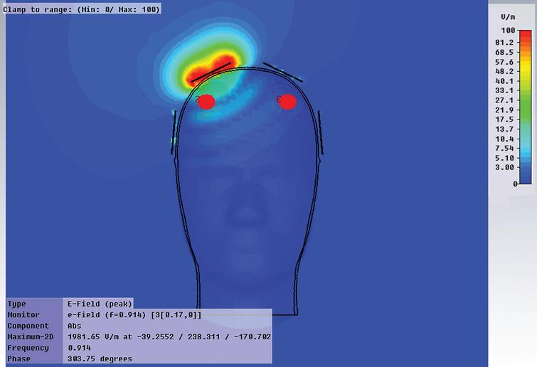 An FDTD computer simulation showing deep electric field penetration by an excitation element (one of eight elements) positioned on the cranium. Deep brain regions, such as the hippocampus and entorhinal cortex, are easily affected by this single element.