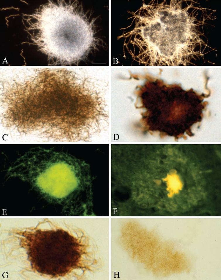 Pure in vitro B. burgdorferi biofilms contain Aβ an important component of senile plaques. A, B) Dark field microscopy images of pure B. burgdorferi biofilms of reference strain B31 cultivated from infected tick (A) and strain ADB1 cultivated from the brain of an AD patient with confirmed chronic Lyme neuroborreliosis (B). C) Pure B. burgdorferi biofilm of strain ADB2 stained with Warthin and Starry silver technique for the detection of spirochetes. D) Pure B. burgdorferi biofilm of strain ADB2 immunostained with anti-OspA monoclonal antibody exhibiting positive immunoreaction. E) Green thioflavin S fluorescence of in vitro formed B. burgdorferi biofilm of strain ADB2. F) Thioflavin S fluorescence of a senile plaque in the frontal cortex of an AD patient where B. burgdorferi ADB2 strain was cultivated from the brain. G) In vitro formed B. burgdorferi biofilm (strain B31) immunoexpressing AβPP; H) In vitro B. burgdorferi biofilm of strain ADB1 exhibiting positive Aβ immunoreaction. Scale bar = A: 15 μm for A-C and E-H and 10 μm for D.